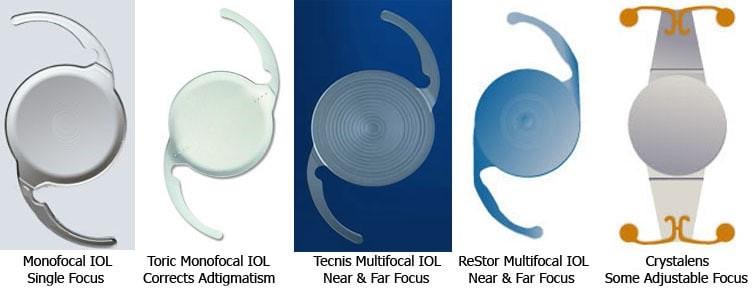 Các loại kính nội nhãn đa tiêu, điều tiết và đơn tiêu
