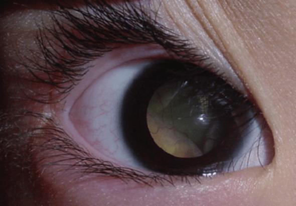 Đồng tử trắng - retinoblastoma