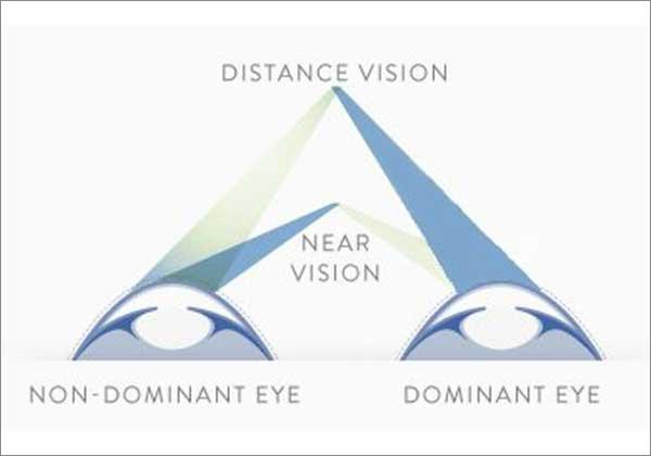 Thị lực gần và xa với mắt chủ đạo và không chủ đạo