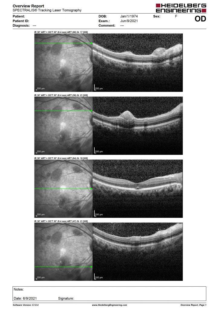 Phù hoàng điểm của bệnh nhân có Roth's spots sau cắt bè