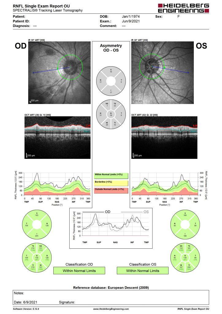 OCT vùng gai thị của bệnh nhân có Roth's spots sau cắt bè 1 ngày