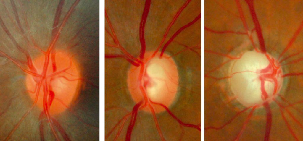 Biến đổi của gai thị trong bệnh glôcôm