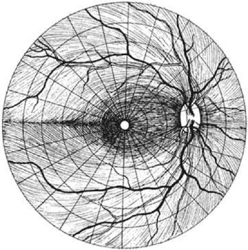 Các sợi trục từ khắp nới trên võng mạc tập trung tại gai thị