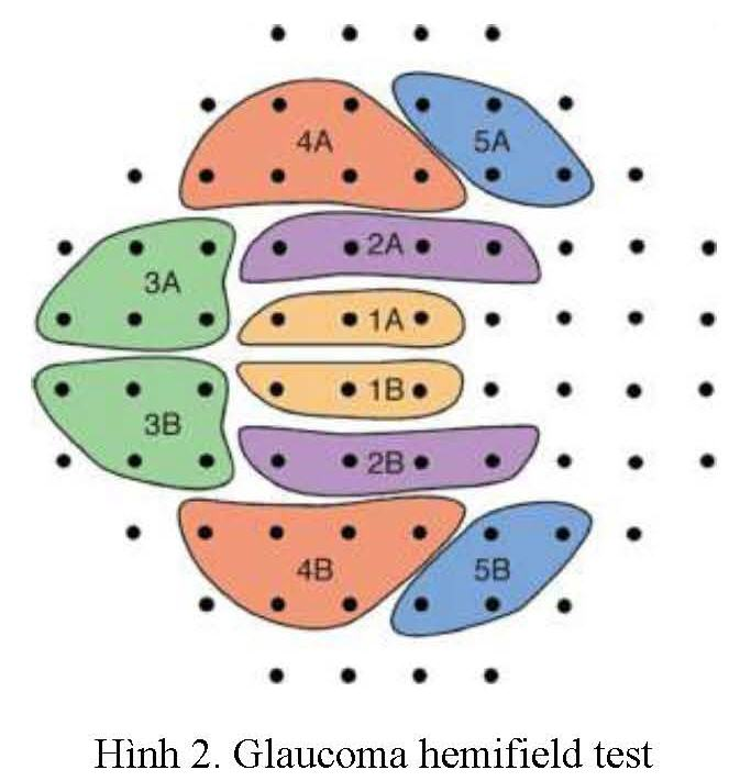GHT Glaucoma hemifield test