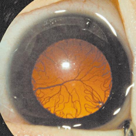 Tồn tại mạch máu quanh thủy tinh thể