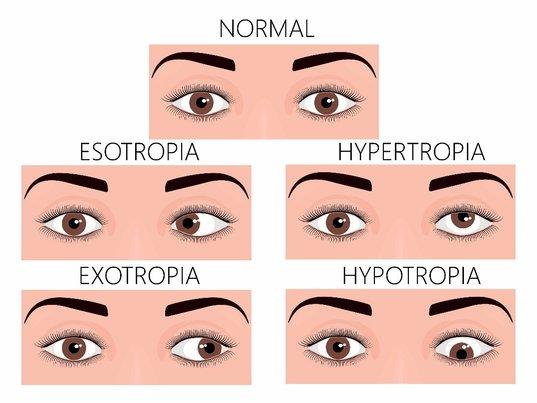 Các hình thái của lác (lé mắt)