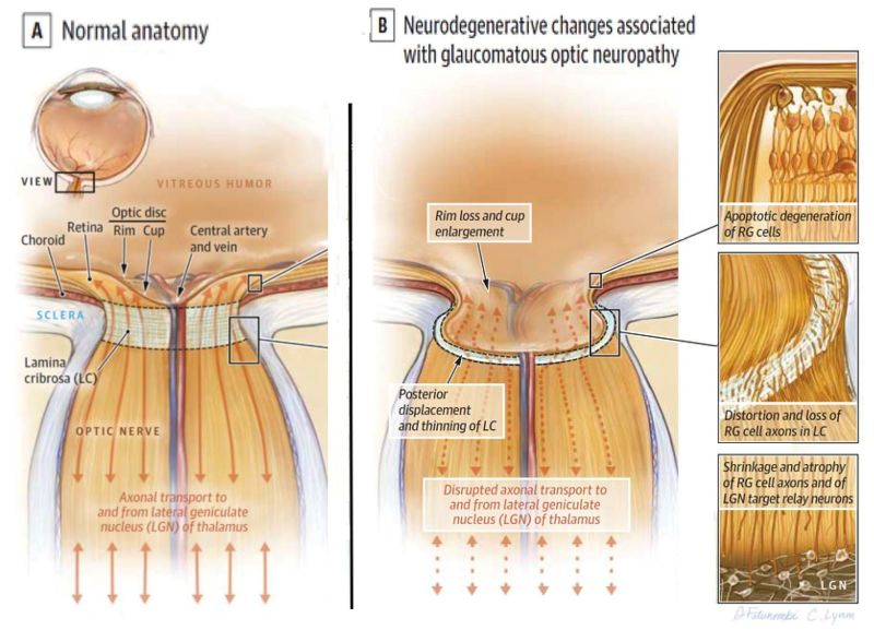 Những tổn thương thoái hóa thần kinh liên quan đến bệnh glôcôm