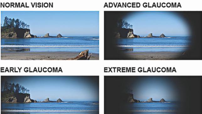 Diễn tiến thị giác của bệnh glôcôm theo thời gian