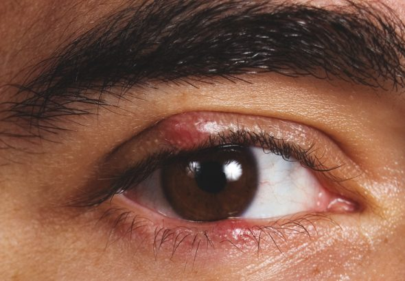 Lẹo mắt