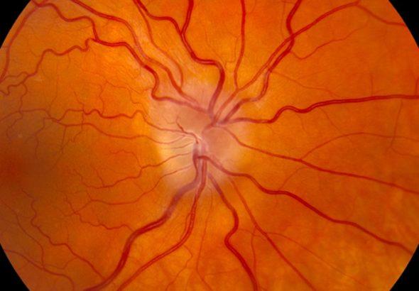 Ca lâm sàng viêm thị thần kinh
