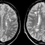 Tổn thương chất trắng bệnh xơ cứng rải rác trên MRI