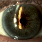 Lỗ cắt mống mắt chu biên bằng laser vị trí 12h